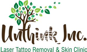 Laser Tattoo Removal & Skin Clinic