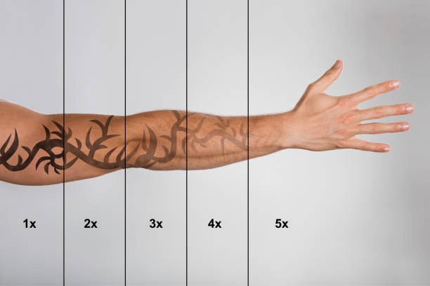 Tattoo Removal Process >> How To Speed Up Your Laser Tattoo Removal Treatments Unthink Inc