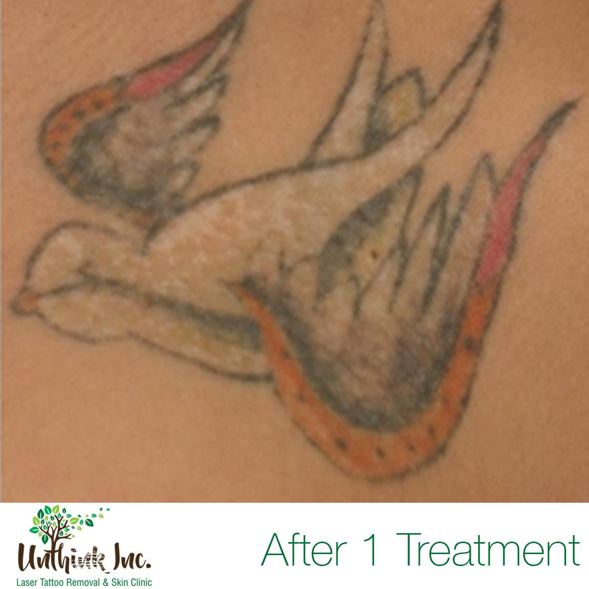 unthink inc laser tattoo removal before and after results
