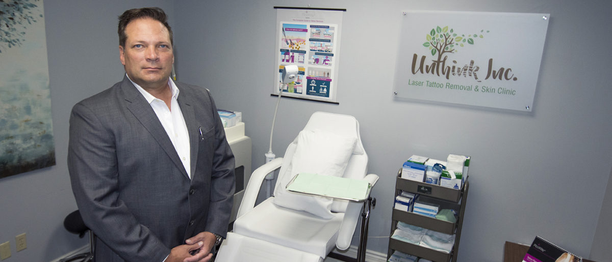 Uninked | Laser Tattoo Removal in Ajax | Unthink Inc