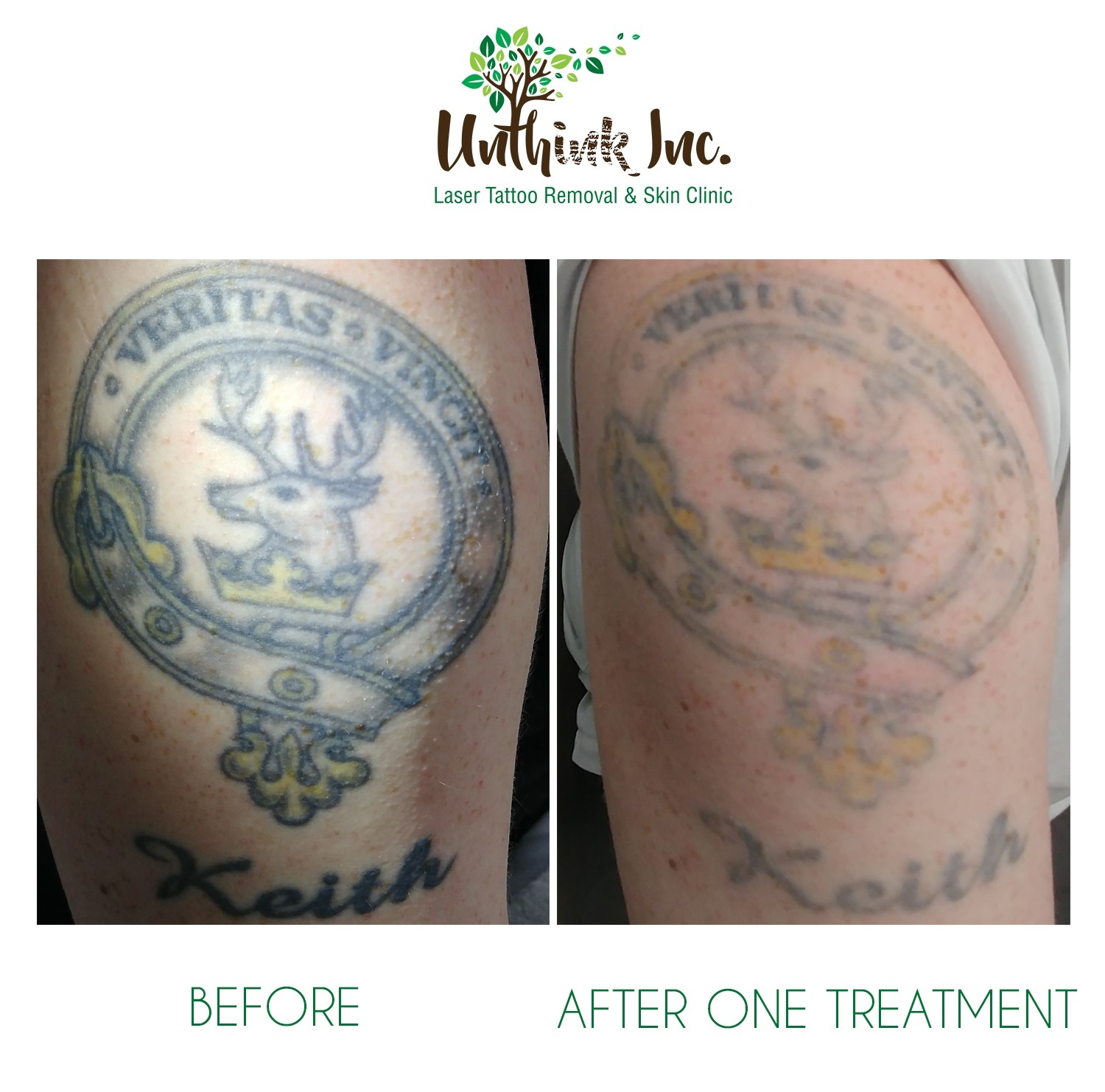 Green and Yellow Ink Colours Tattoo Removal   Unthink Inc.