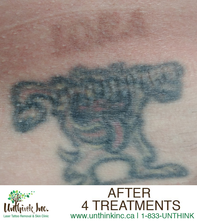 PicoWay Laser Tattoo Removal After unthink inc