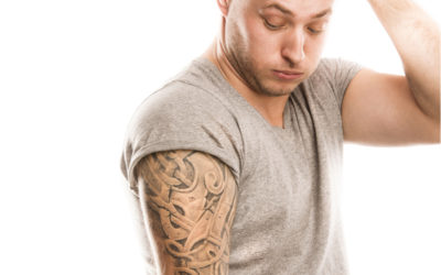 Reasons For Tattoo Removal