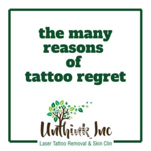 tattoo removal at unthink inc