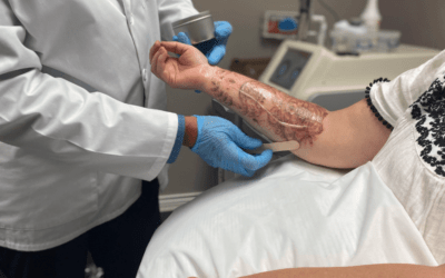 Laser Tattoo Removal Post Treatment Care